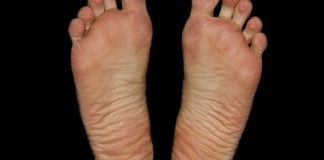 Remedy prevent foot crack