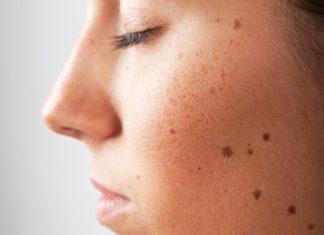 Black mole remedies