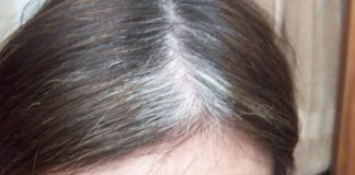 prevent premature gray hair