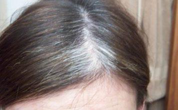 prevent premature gray hair