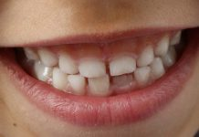 Teeth Sensitivity Home Remedies
