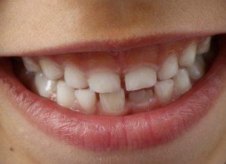 Teeth Sensitivity Home Remedies
